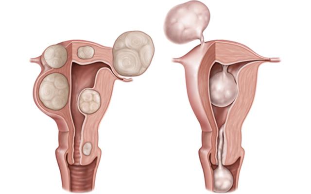 子宮 筋腫